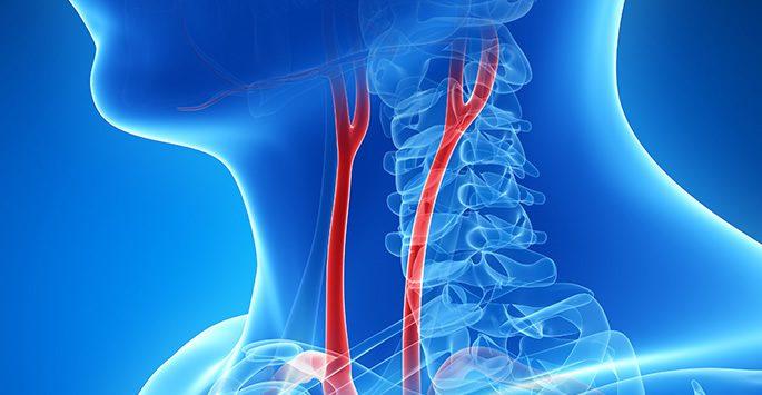 Στένωση καρωτίδας